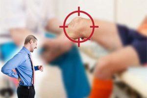 Колаген на прах за лечение на остеоартрит и стави