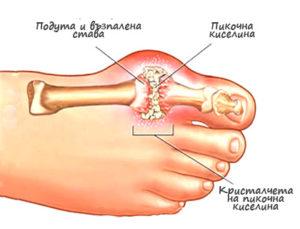 Подагра - симптоми и лечение