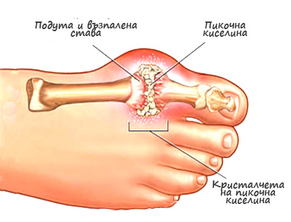Подаграта - симптоми и лечение