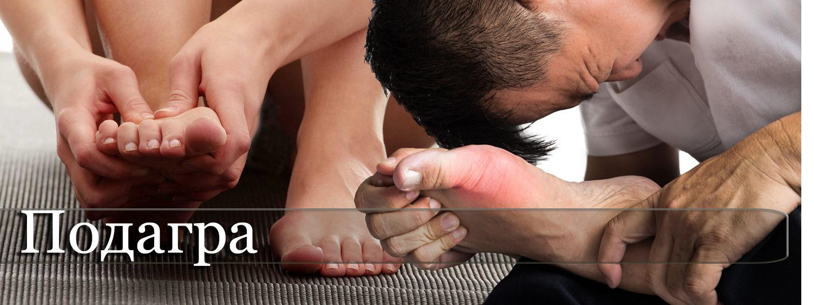 Подагра - симптоми, причини и лечение